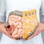 Лактозная недостаточность - симптомы, как лечить