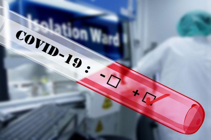 Что делать чтобы не заразиться коронавирусом